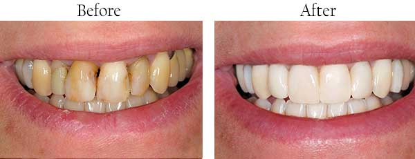Ellicott City Before and After Teeth Whitening