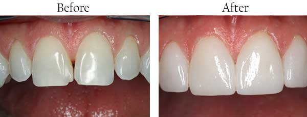 Ellicott City Before and After Dental Implants